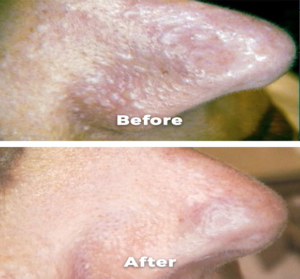 skin issue before after of nose